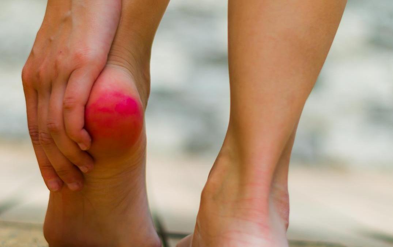 Ból pięty przy chodzeniu – co może oznaczać?