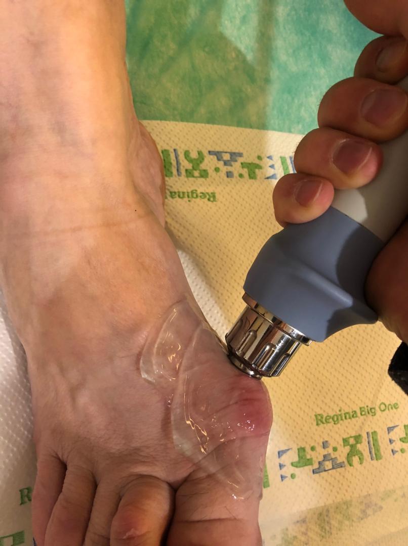 Leczenie haluksów falą uderzeniową